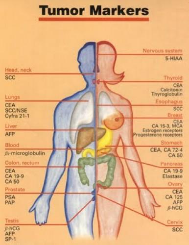 Petefészekrák kialakulásának okai, tünetei, kezelése