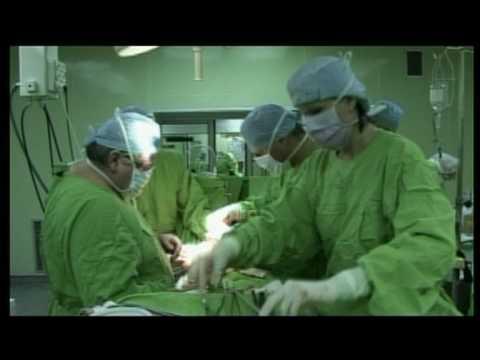 vastagbélrák műtét