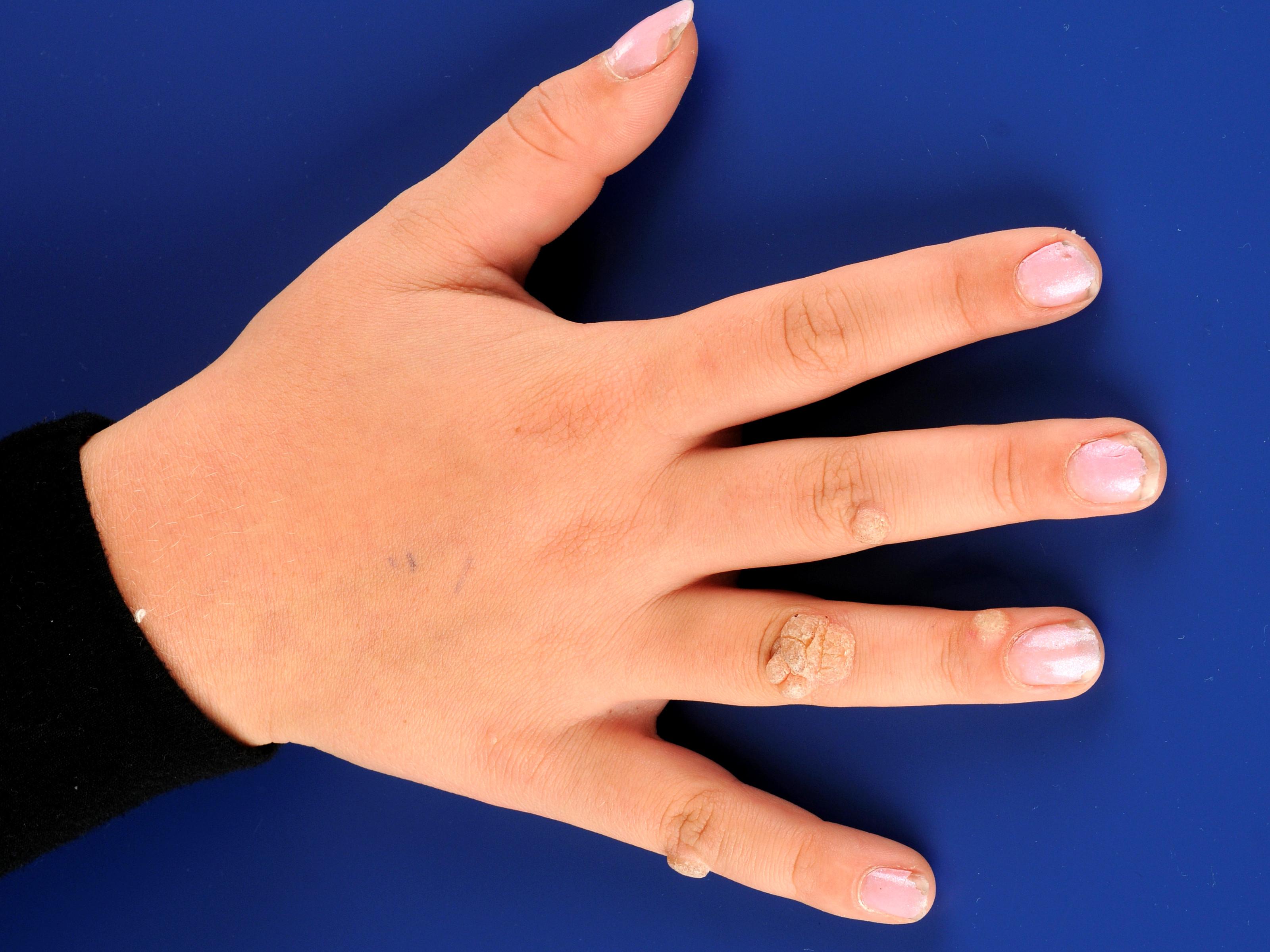 széles spektrumú gyógyszer paraziták ellen emberi papillomavírus brosúra