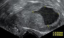 az endometrium rákja