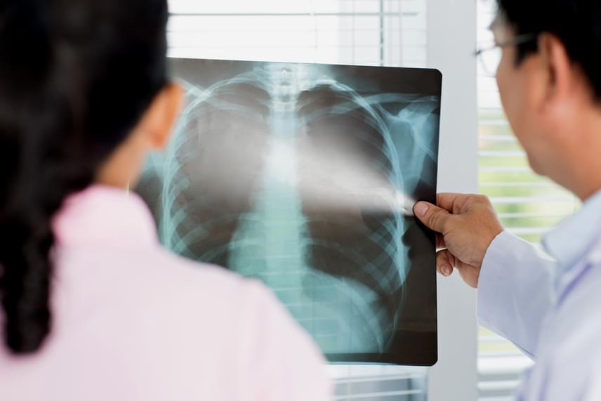 A tüdőrák tünetei - mik a legáltalánosabb panaszok? | podkedd.hu