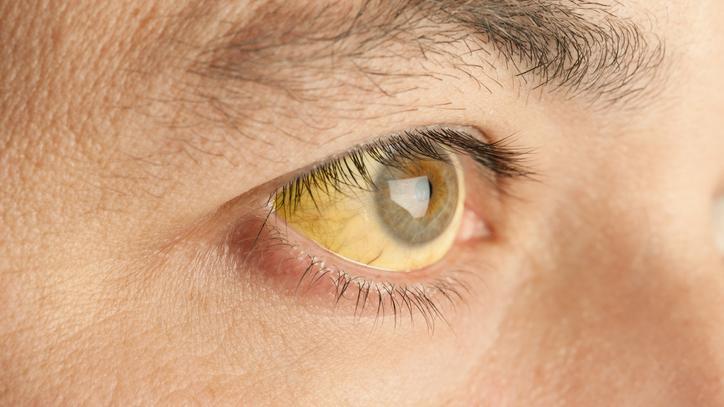hasnyálmirigyrák sárga