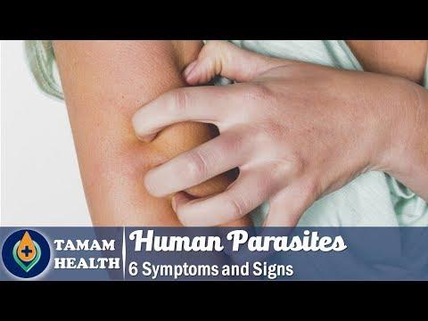 természetes kezelés pinworms