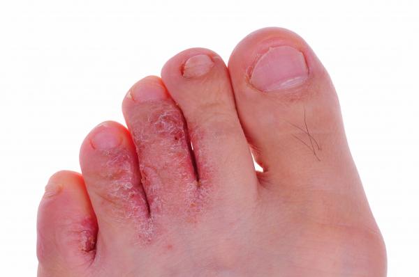 hólyagok a lábujjak között