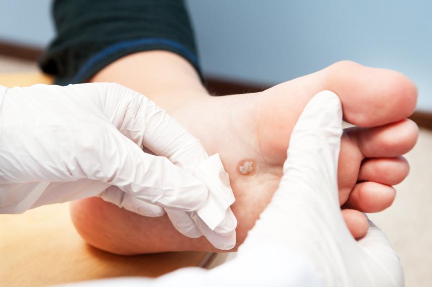 Apró kinövés a bőrön, amitől nem csak a szike szabadíthat meg: fibrómát tilos piszkálni