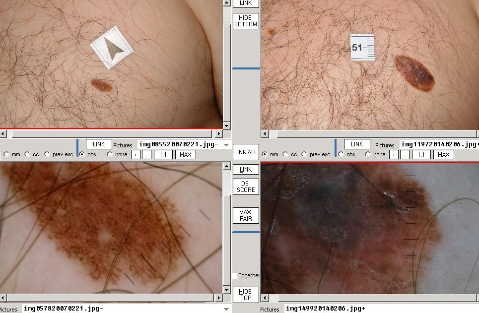 Bőrrák/Melanoma