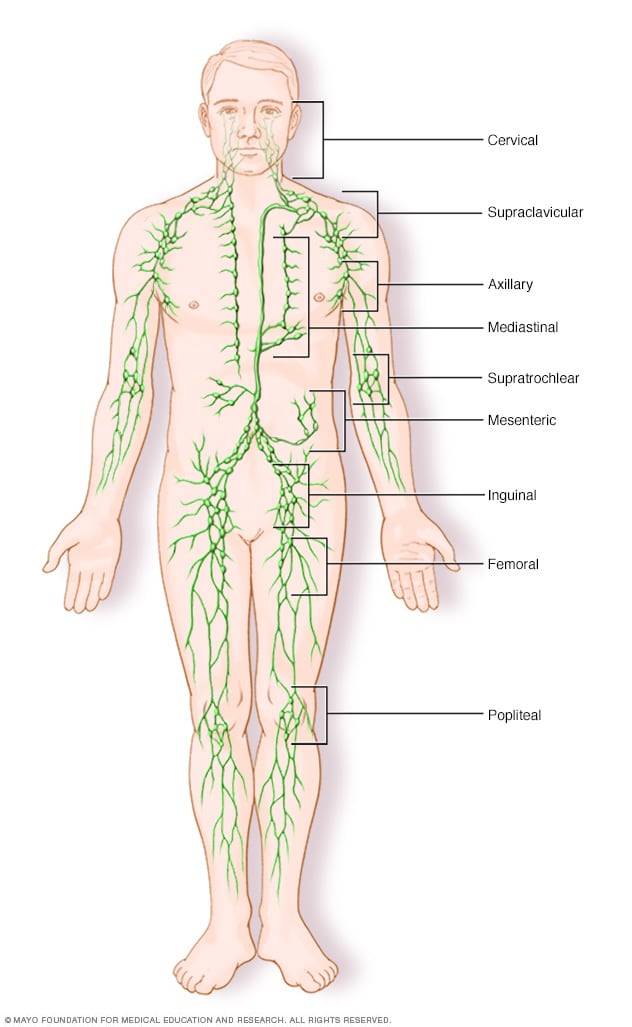 rákkezelés hodgkin s lymphoma