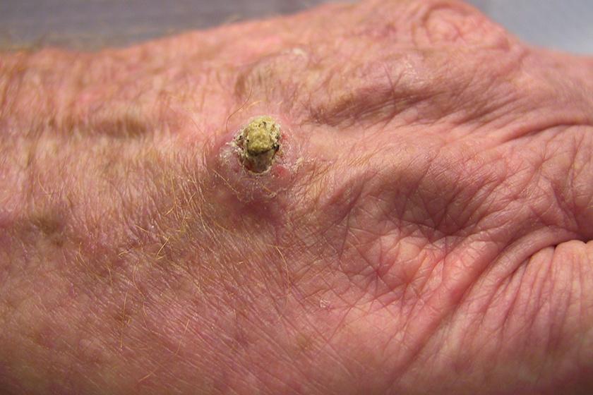 zsigeri rák tünetei kenőcs szemölcsök és papillómák a lábakon