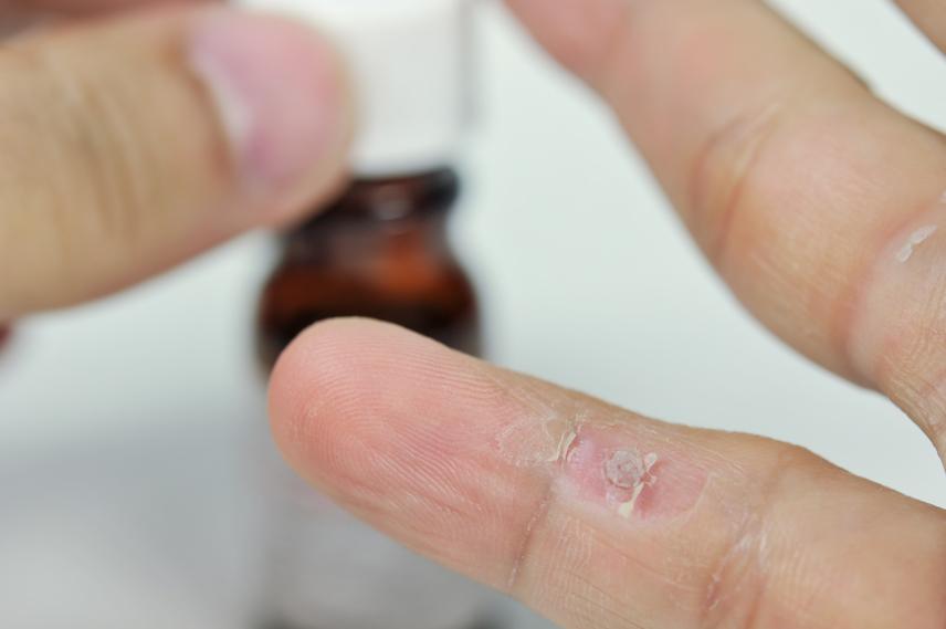 féreghajtó gyógyszerek értékelése féreghajtó gyógyszerek mellékhatása