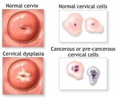 a genitális szemölcsök diatermokoagulációja)