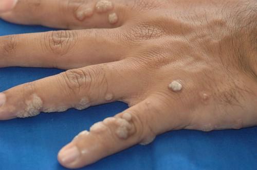 szerv toxinok parazita tisztítási hírek