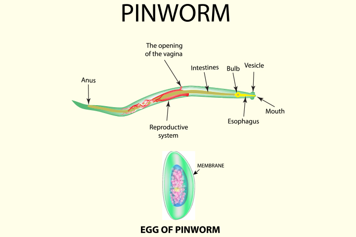 pinworm pamoate kezelés pinworms