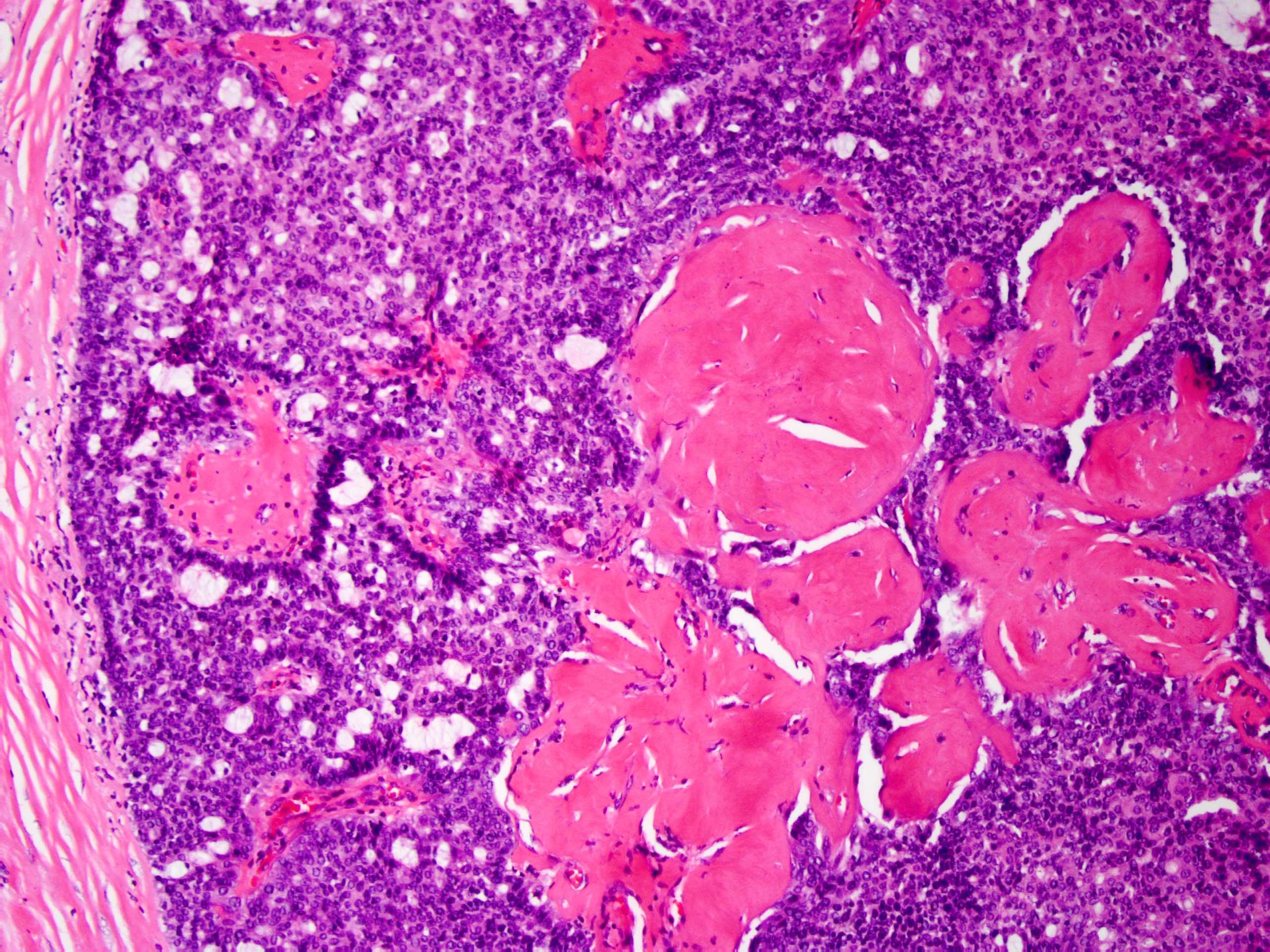 intraductalis papilloma apokrin metaplasiával