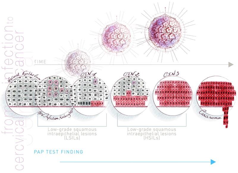 A méhnyakrák hátterében a HPV áll
