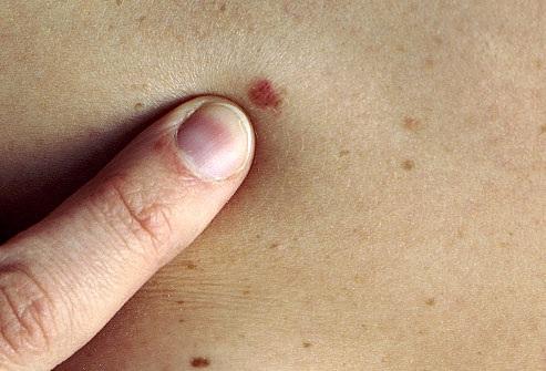 a bőrrák gyógyul