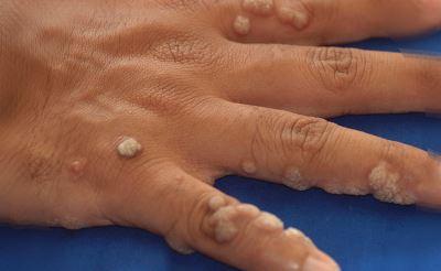 a szemölcs eltűnt schistosomiasis és hólyagrák