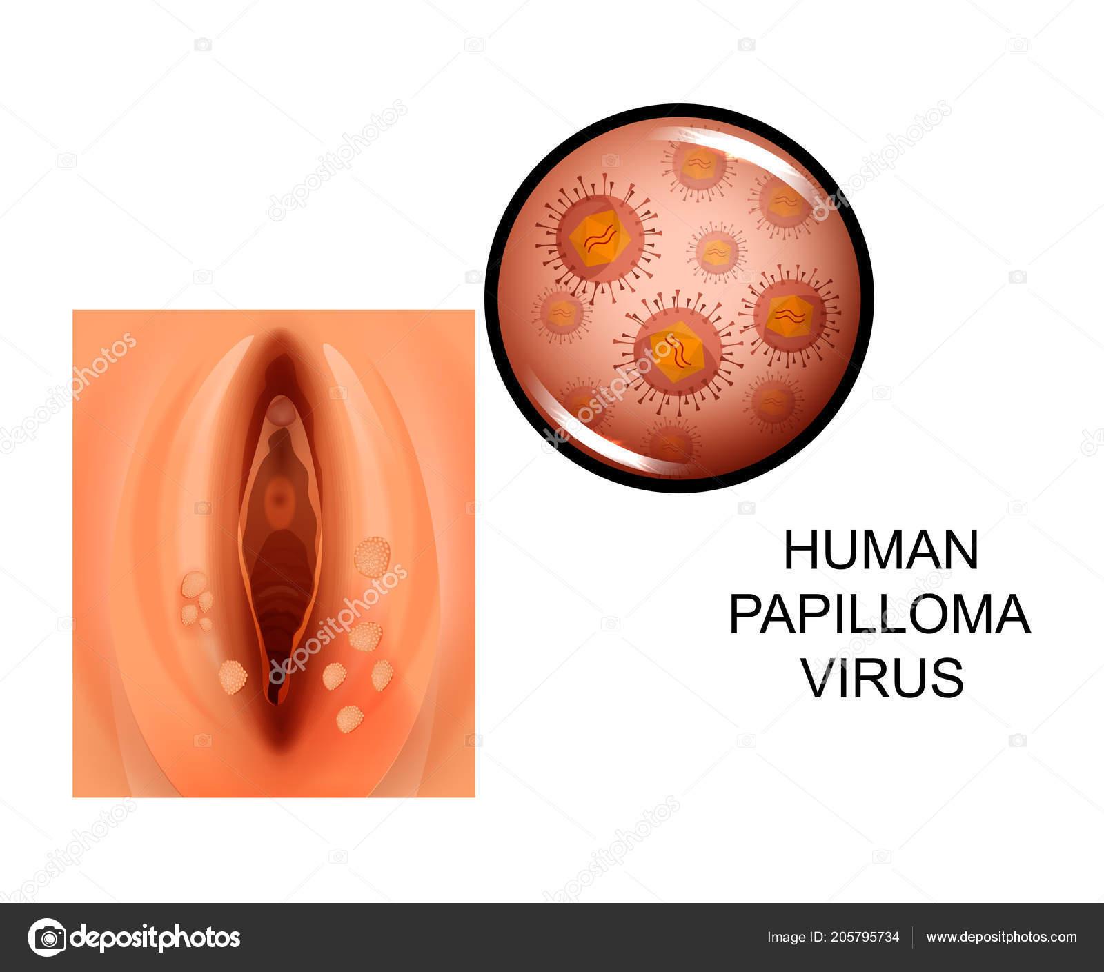 Jóindulatú emlődaganatok - EgészségKalauz