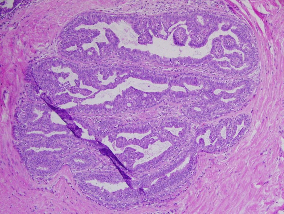 intracisztás intraductalis papilloma)