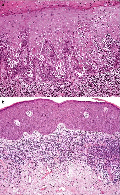 urethralis condyloma férfiaknál)