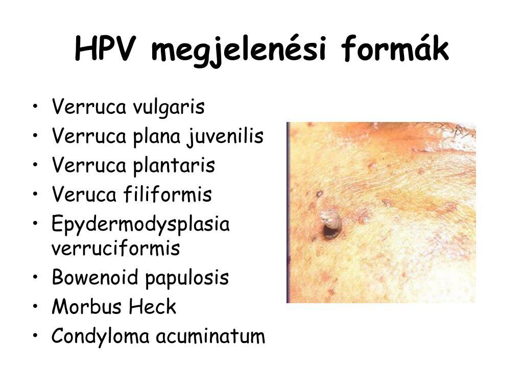 condyloma acuminatum kezeles