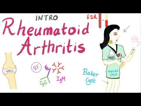 Nekrózis tünetek felnőtteknél. A felnőttkori combfejelhalás okai, tünetei és kezelése