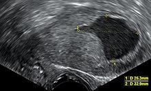 az endometrium rákja)