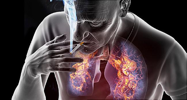 fájdalom tüdőrákban