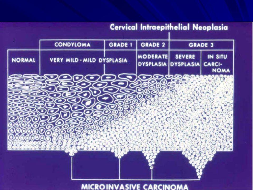 condyloma ami azt jelenti
