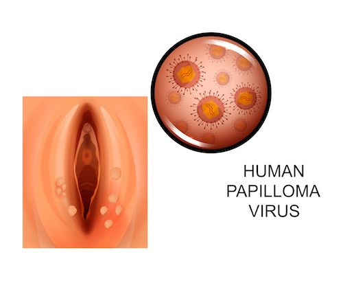 hpv vírus pri moskih