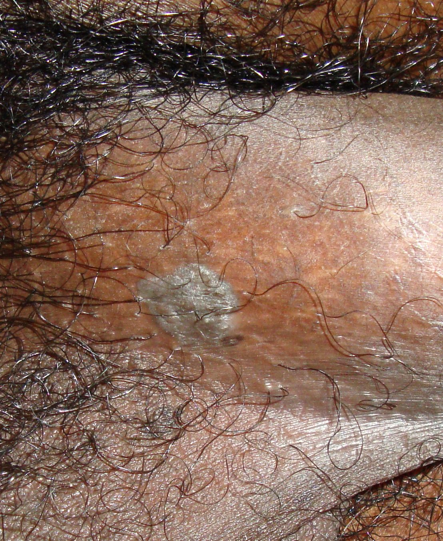 condyloma acuminata és szülés kezeletlen rák