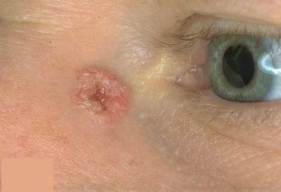 Bőrrák: ez az öt vészjel mutathatja, hogy baj van