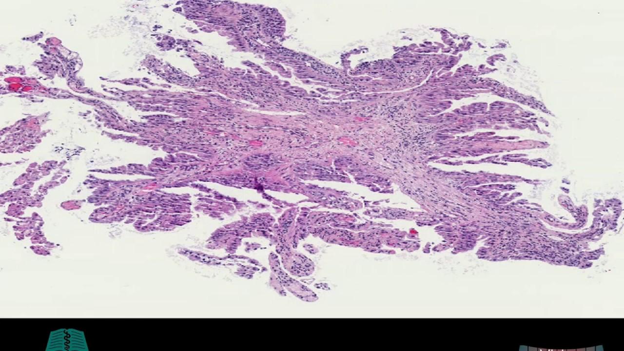 papilloma eltávolítja az onkológust