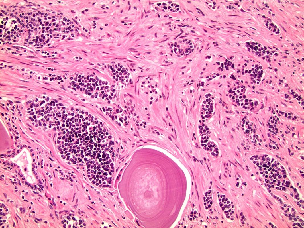 neuroendokrin rák moffitt