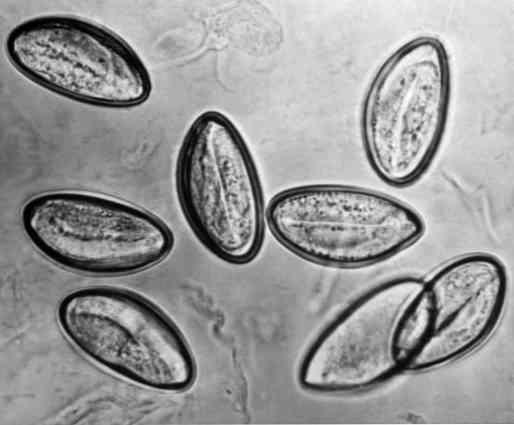 pinworms tojás kezelés