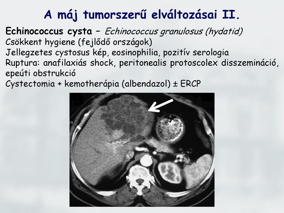 intrahepatikus epevezeték papillomatosis)