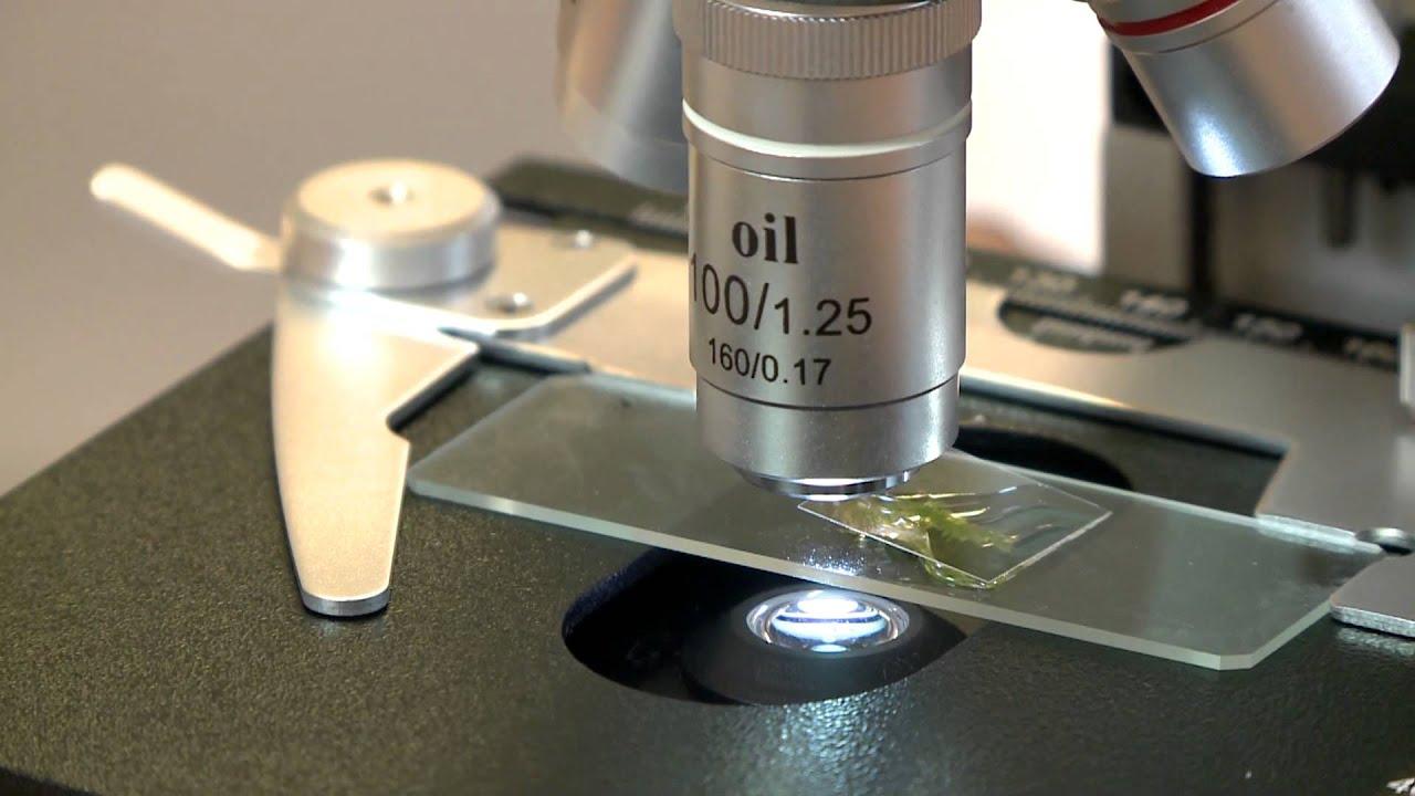 foldigilis mikroszkóp alatt)
