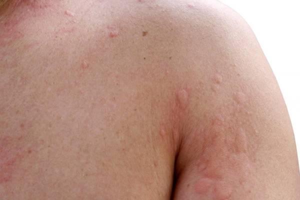 Bőrrák, rosszindulatú bőrdaganatok - KOC blog