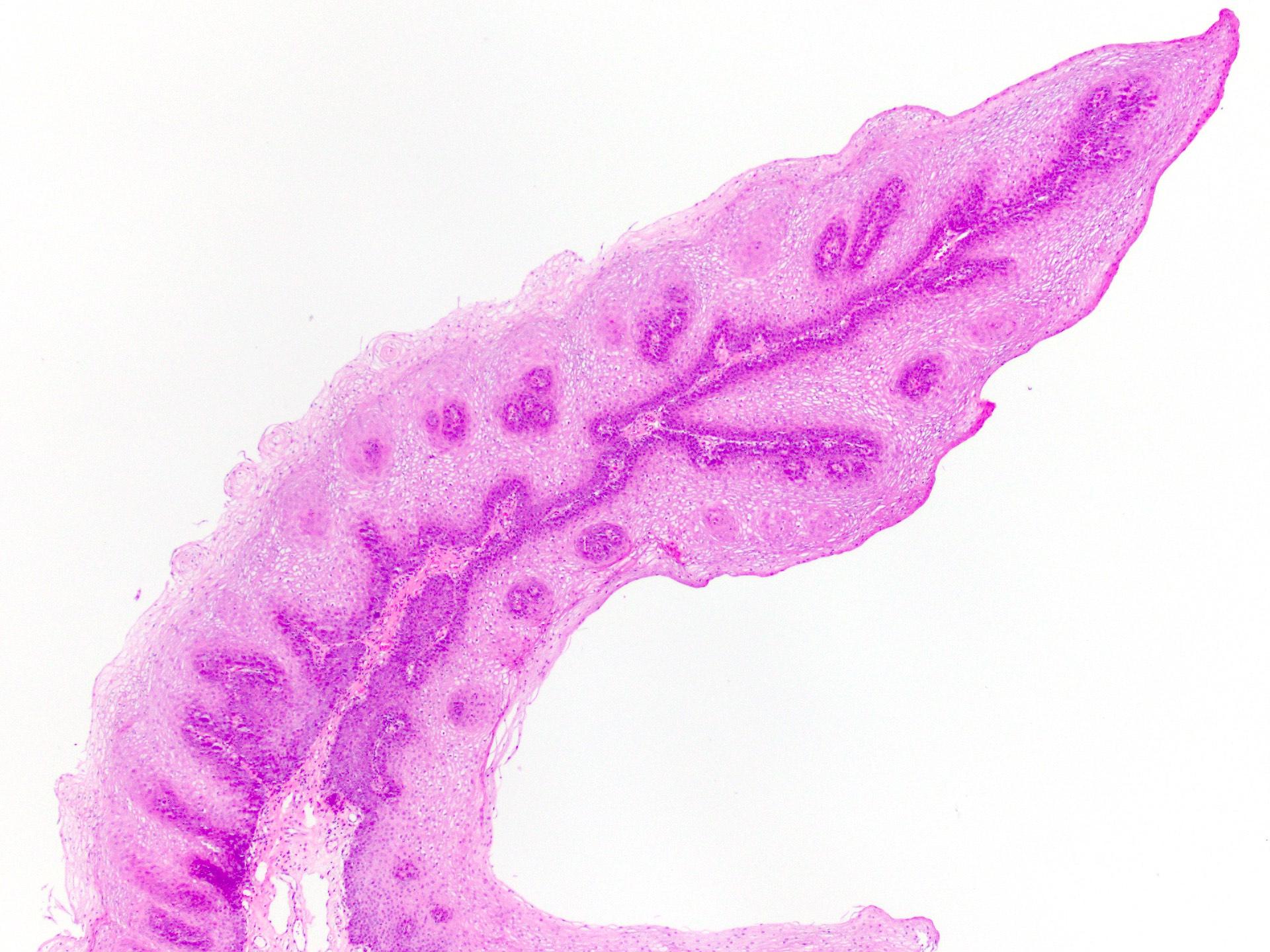 fordított papilloma patológia körvonalai
