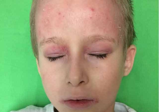 krónikus dermatitis