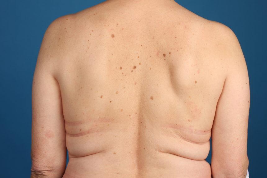 bőrparaziták tünetei szemölcsök hány lehet belőlük