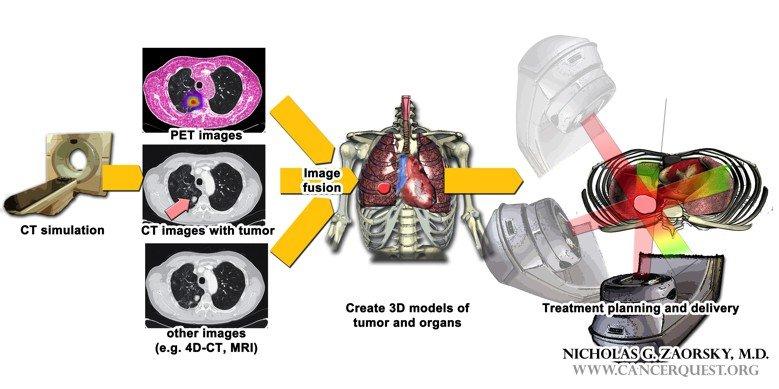 rektális rák sugárterápiás mellékhatásai