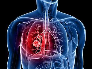 a tüdőrák okai)