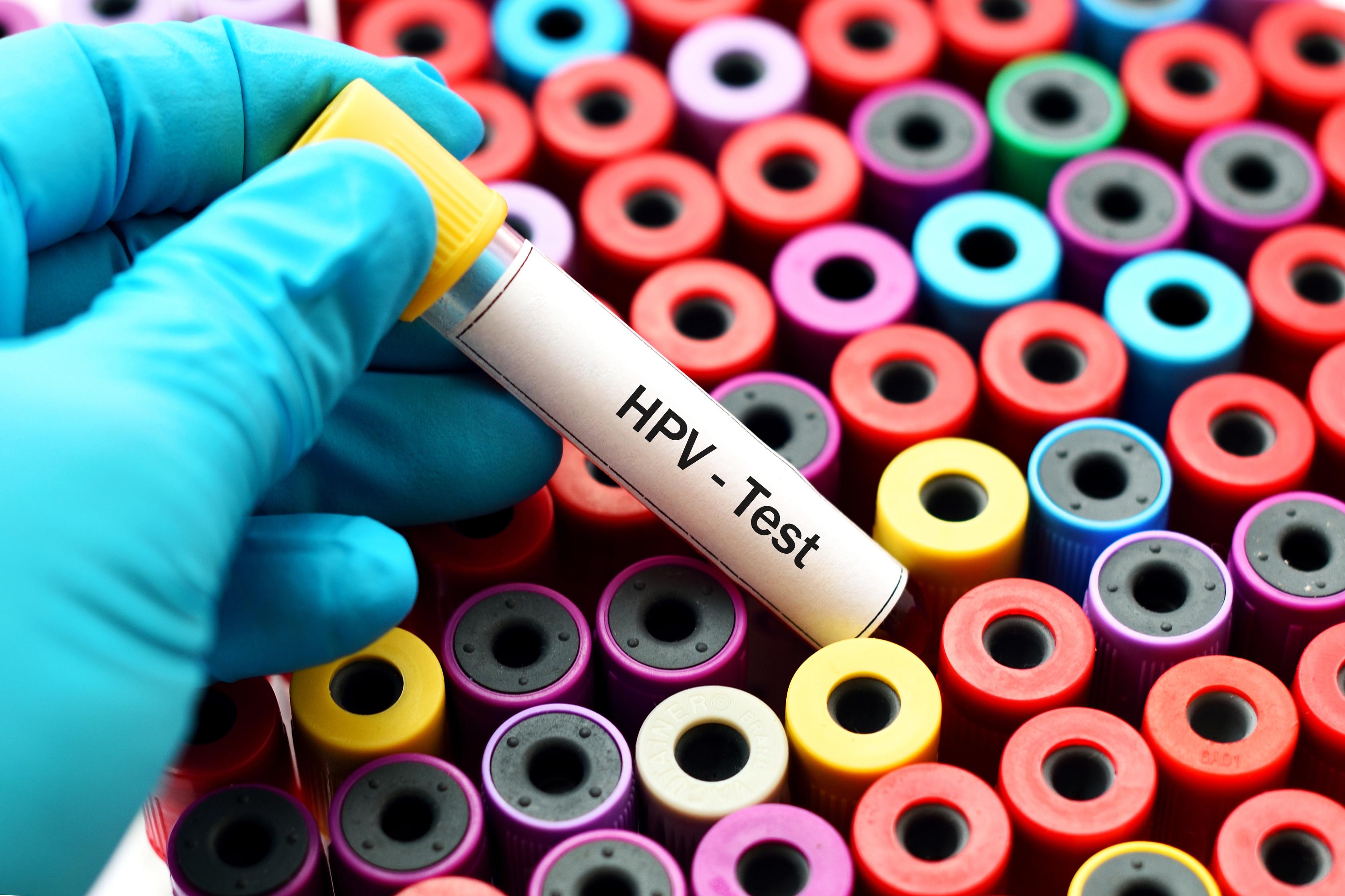 Nyolc HPV-tévhit