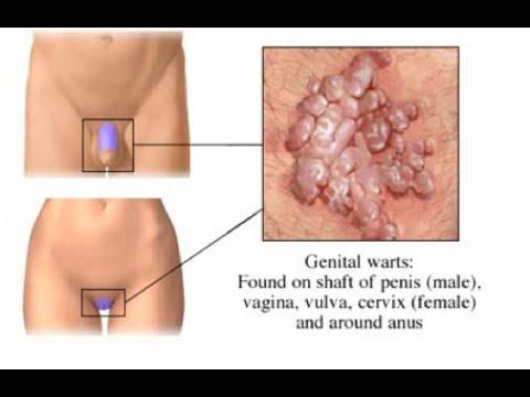 Nemi szervi szemölcsök | HPVdoktor