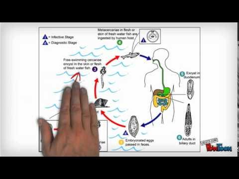 hogyan lehet eltávolítani a trematode férgeket