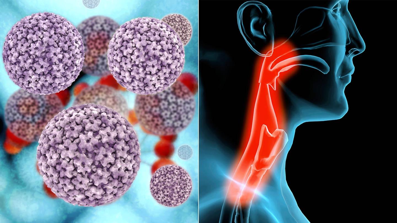 HPV okozta daganatok | HPVdoktor