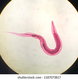 enterobiosis pinworm)