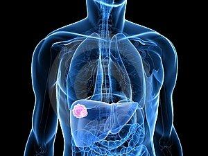 máj- és tüdőrák