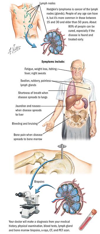 ráktanács hodgkin s lymphoma)