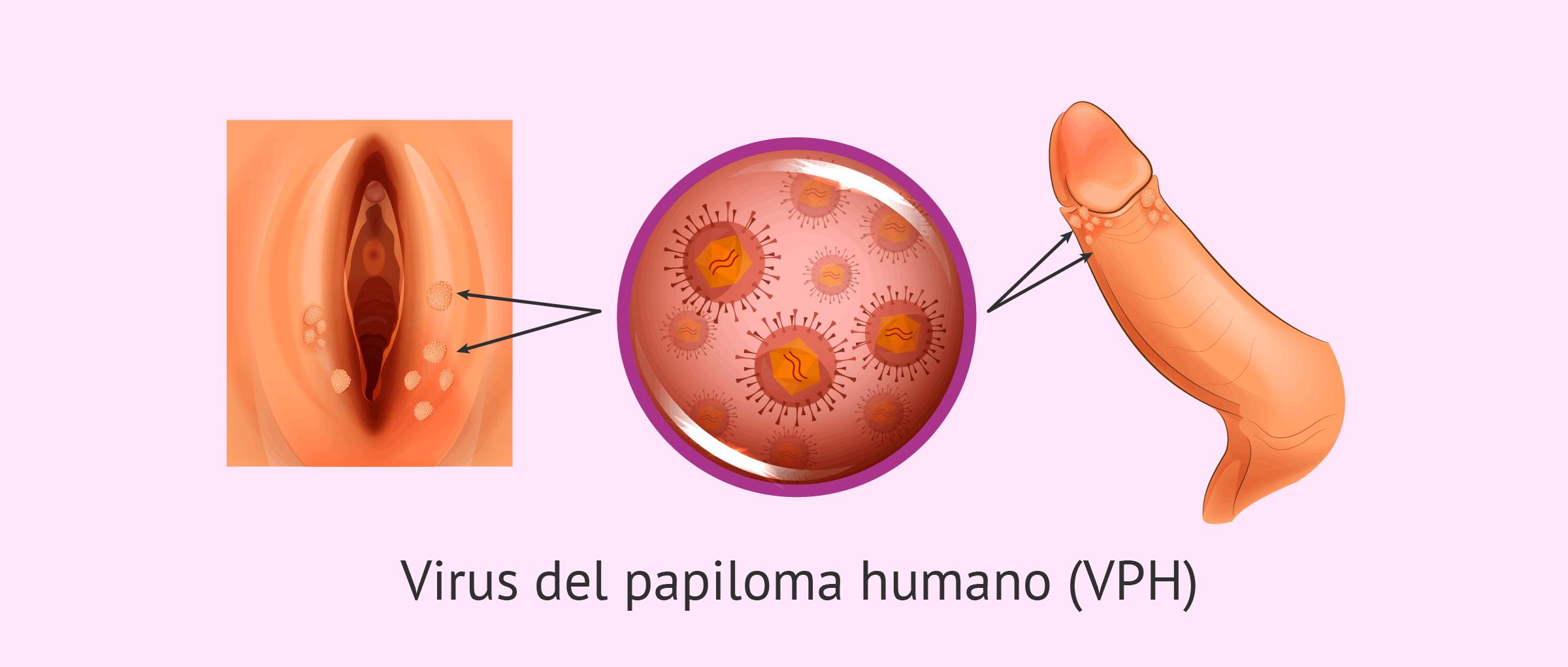 HPV - mi az és hogyan kezelhető a fertőzés